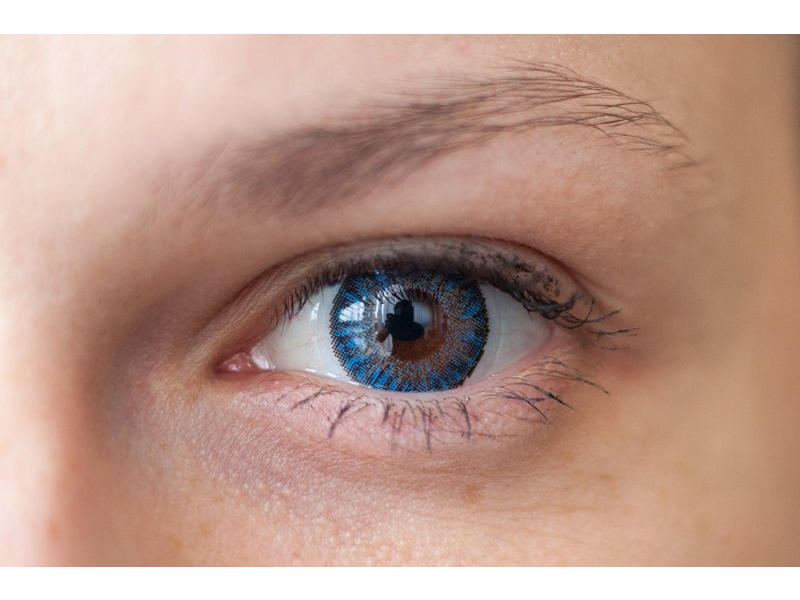 Blue on brown eye